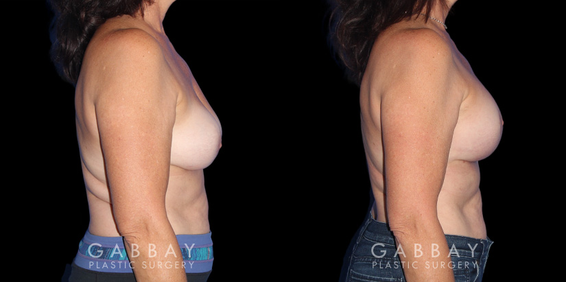 Patient 22 Right Side View R&R + Breast Lift Gabbay Plastic Surgery