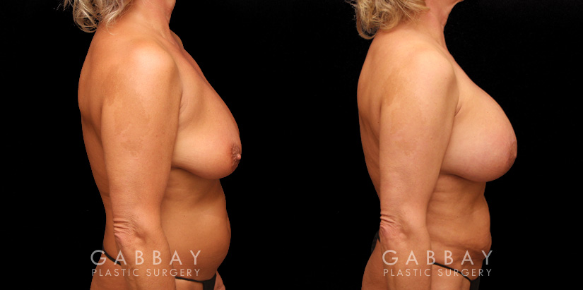 Patient 23 Right Side View Breast Aug/Pexy with Liposcution and J-plasma to the Full Abdomen and Upper Back Bra Roll Gabbay Plastic Surgery