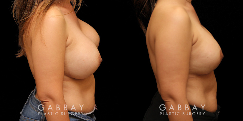 Patient 12 Right Side View Augpexy Gabbay Plastic Surgery