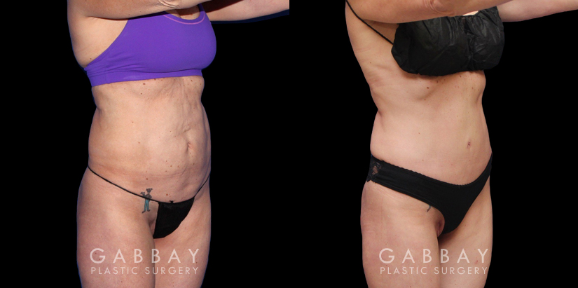 Patient 11 3/4th Right Side View Abdominoplasty & Inner Thigh Lipo Gabbay Plastic Surgery