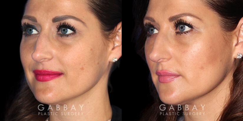 Patient 01 3/4th Left Side View Upper Eyelid Blepharoplasty with Fat Transfer to Face Gabbay Plastic Surgery