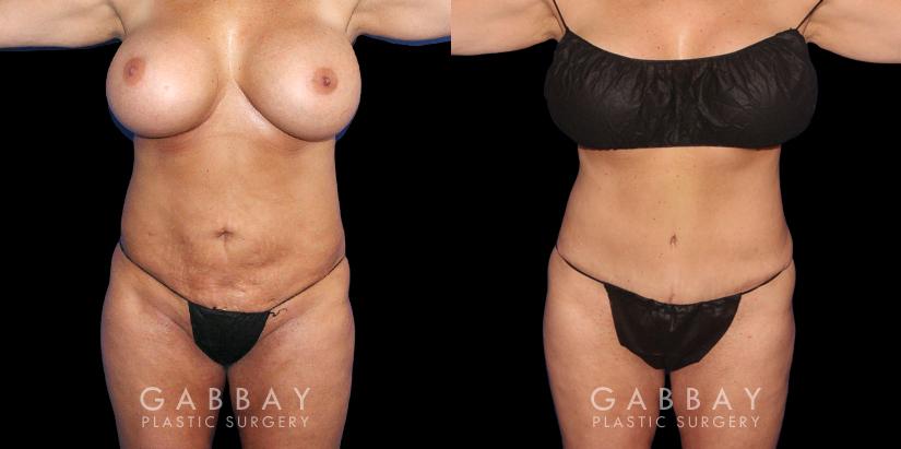 Patient 17 Front View Abdominoplasty Gabbay Plastic Surgery