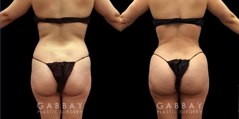 Patient 07 Back View Brazilian Butt Lift Gabbay Plastic Surgery