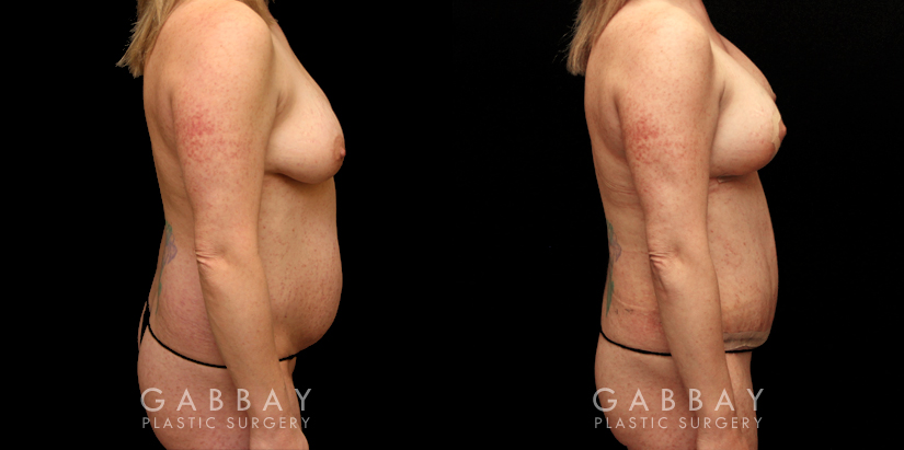 Patient 02 Right Side View Mommy Makeover Gabbay Plastic Surgery