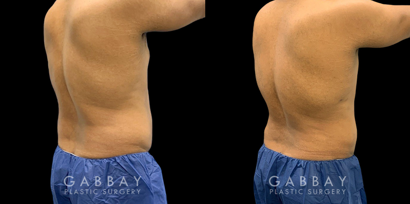 Patient 03 4/5th Right Side View Lipo Male Gabbay Plastic Surgery