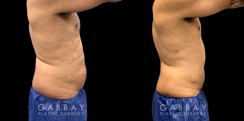 Patient 02 Right Side View Lipo Male Gabbay Plastic Surgery