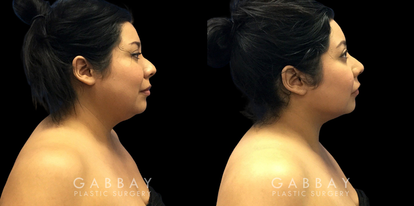 Patient 08 Right Side View Lipo Neck Gabbay Plastic Surgery