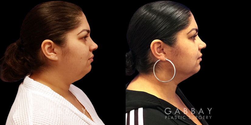 Patient 03 Right Side View Lipo Neck Gabbay Plastic Surgery