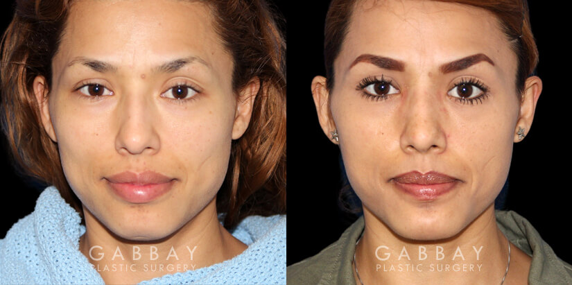 Patient 01 Front View Chin implant, Rhinoplasty, BAM Gabbay Plastic Surgery