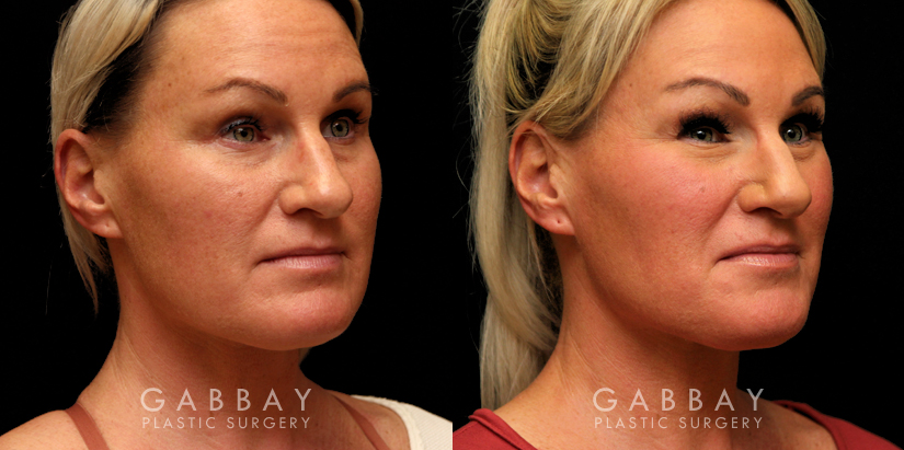 Patient 06 3/4th Right Side View Buccal Fat Pad Removal Gabbay Plastic Surgery
