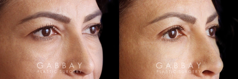Patient 01 3/4th Right Side View Blepharoplasty Gabbay Plastic Surgery