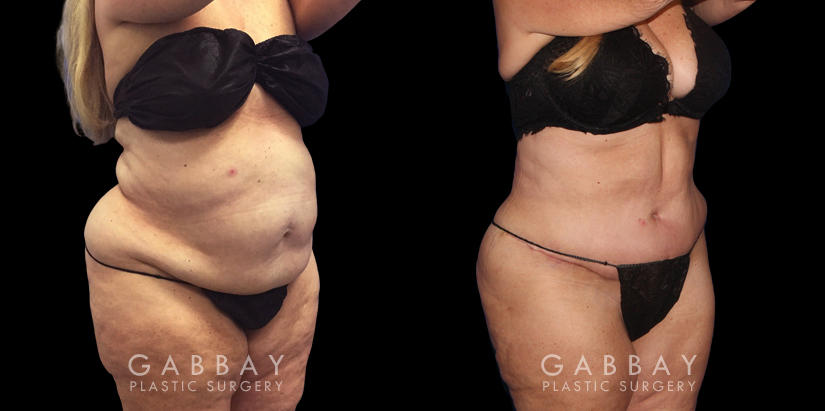 Patient 08 3/4th Right Side View Tummy Tuck Gabbay Plastic Surgery