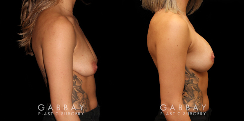 Patient 04 Right Side View Mastopexy with Breast Augmentation Gabbay Plastic Surgery