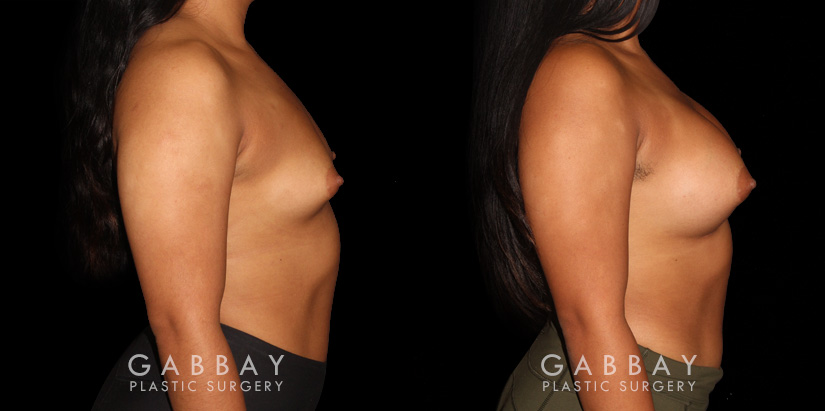 Patient 05 Right Side View Breast Augmentation Silicone Implants Gabbay Plastic Surgery