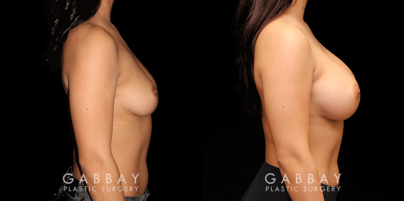 Patient 01 Right Side View Breast Augmentation Silicone Implants Gabbay Plastic Surgery
