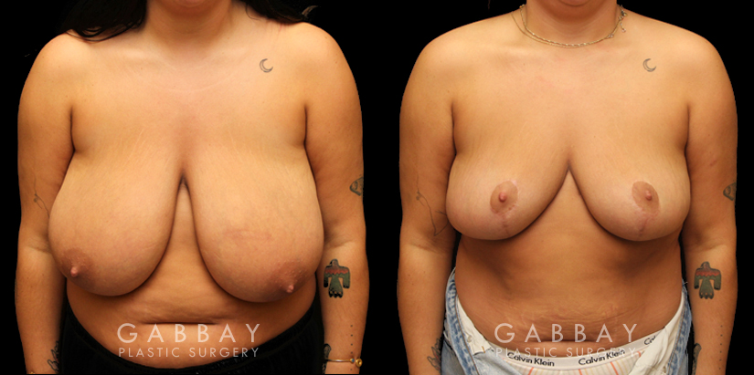Patient 02 Front View Breast Reduction with Lift Gabbay Plastic Surgery