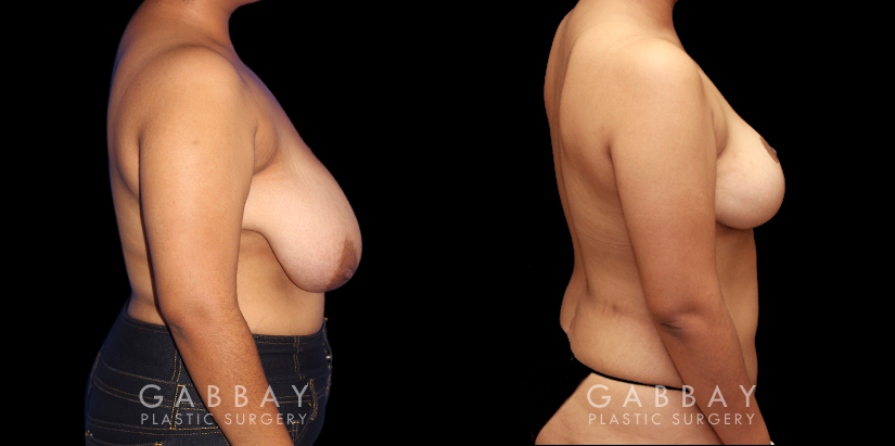 Patient 03 Right Side View Mastopexy Gabbay Plastic Surgery
