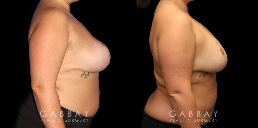 Patient 03 Right Side View Revision Breast Reduction, Revision Wide Mastopext, Belladerm Gabbay Plastic Surgery