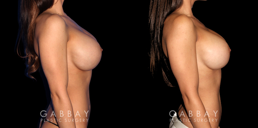 Patient 05 Right Side View R&R of Breast Implants, Scar Rev to 4 Scars, Hernia Repair Gabbay Plastic Surgery