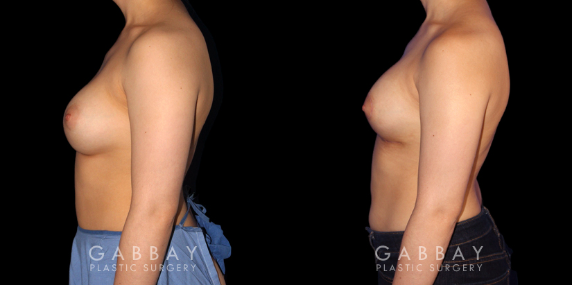 Patient 06 Left Side View Breast Augmentation-Remove and Replace Saline & Full Lift Gabbay Plastic Surgery