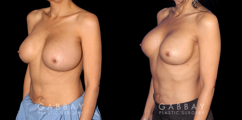 Patient 07 3/4th Left Side View Breast Revision Gabbay Plastic Surgery