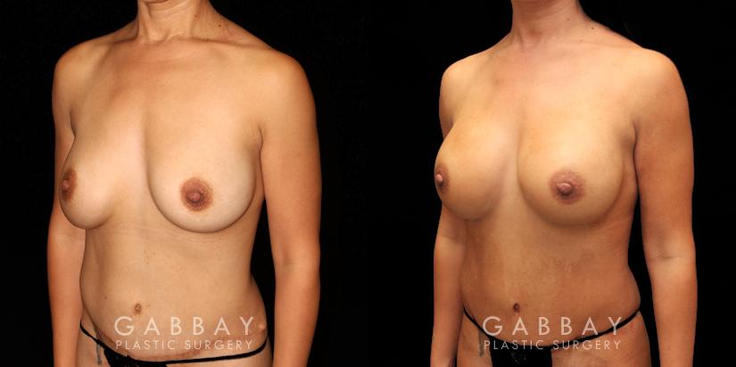 Patient 08 3/4th Left Side View R&R Silicone, Capsuloraphy, Pubis Lift, Scar Revision Gabbay Plastic Surgery