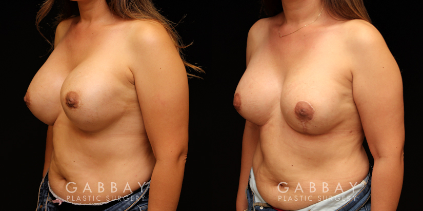 Patient 10 3/4th Left Side View Removal and Replacement with Lift Silicone Implants Gabbay Plastic Surgery