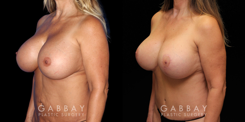 Patient 14 3/4th Left Side View Abdominoplasty Gabbay Plastic Surgery