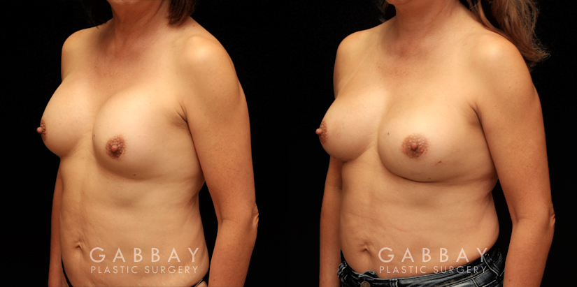 Patient 16 3/4th Left Side View Removal and Replacement Gabbay Plastic Surgery