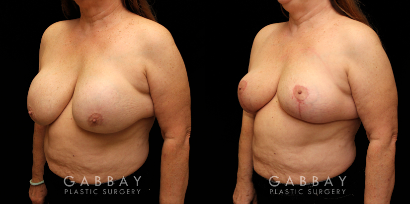 Patient 17 3/4th Left Side View Implant Removal and Lift Gabbay Plastic Surgery