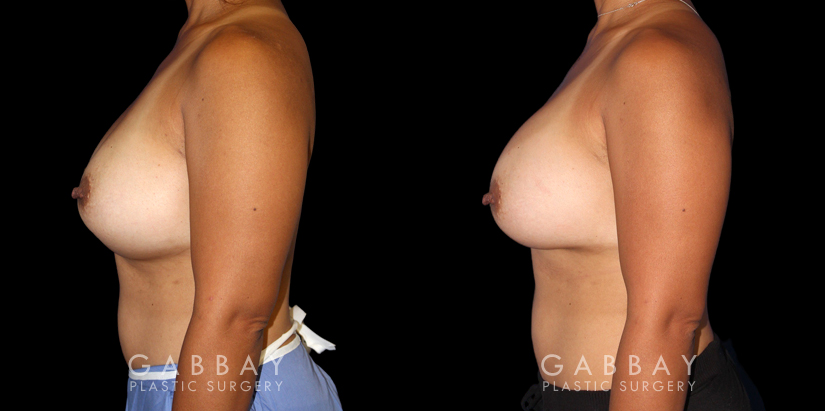 Patient 19 Left Side View Breast Revision Gabbay Plastic Surgery