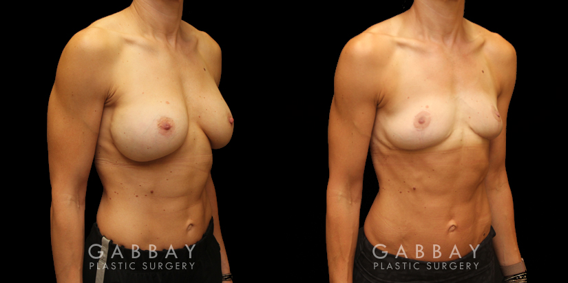 Patient 03 3/4th Right Side View Implant Removal/Mastopexy/Auto Augmentation Gabbay Plastic Surgery