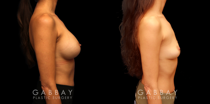Patient 05 Right Side View Implant Removal Gabbay Plastic Surgery