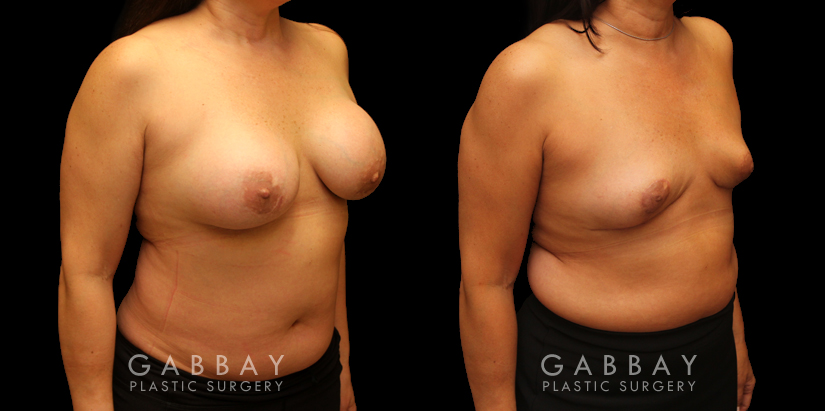Patient 06 3/4th Right Side View Auto Augmentation with Lift Gabbay Plastic Surgery