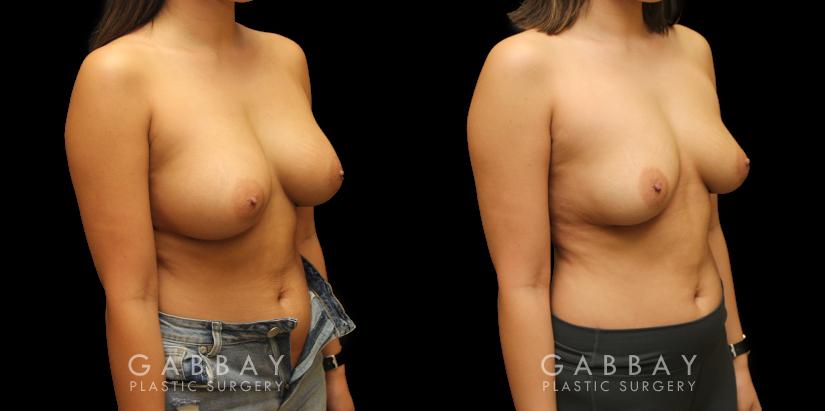 Patient 08 3/4th Right Side View Implant Removal and Lift Gabbay Plastic Surgery