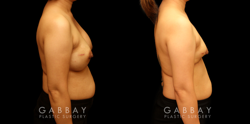 Patient 09 Right Side View Breast Implant Removal and Lift Gabbay Plastic Surgery