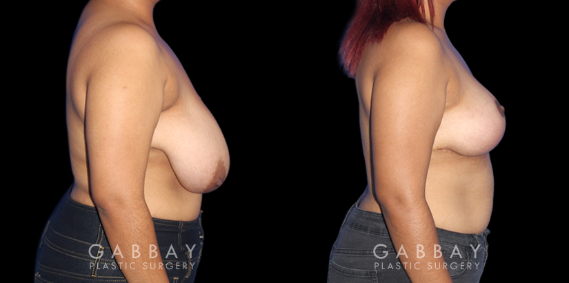 Patient 01 Right Side View Breast Mastopexy Gabbay Plastic Surgery
