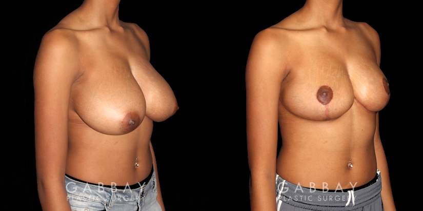 Patient 02 3/4th Right Side View Breast Reduction Gabbay Plastic Surgery