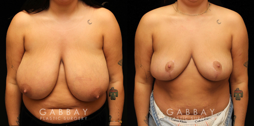 Patient 03 Front View Breast Reduction with Lift Gabbay Plastic Surgery