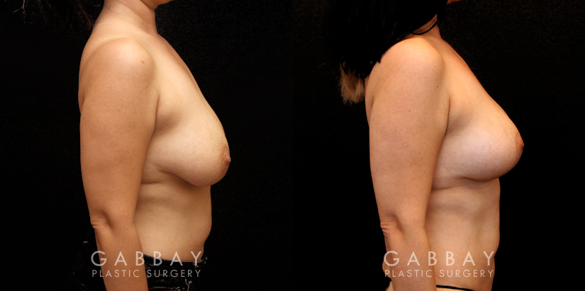 Patient 04 Right Side View Breast Lift and Auto Aug Gabbay Plastic Surgery