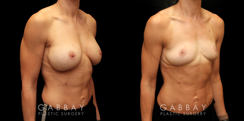 Patient 05 3/4th Right Side View Implant Removal/Mastopexy/Auto Augmentation Gabbay Plastic Surgery