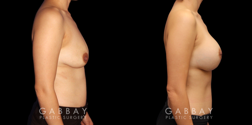 Patient 08 Right Side View Scar Revision to Breasts Gabbay Plastic Surgery