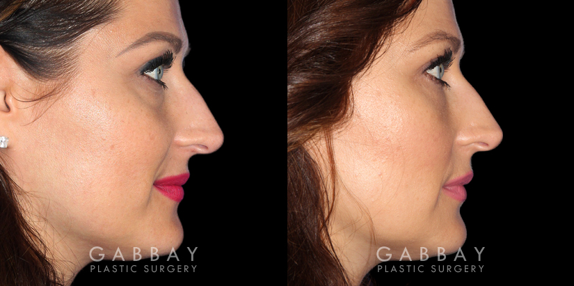 Patient 01 Right Side View Upper Eyelid Blepharoplasty with Fat Transfer to Face Gabbay Plastic Surgery
