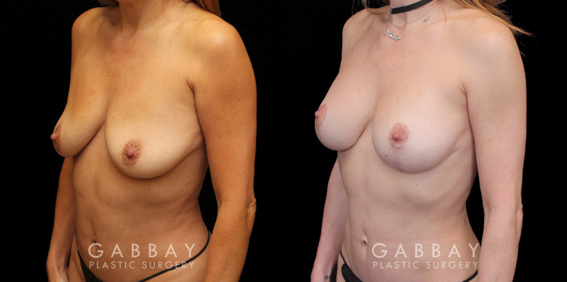 Patient 01 3/4th Left Side View Implant Removal and lift Gabbay Plastic Surgery