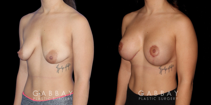 Patient 04 3/4th Left Side View Breast Augmentation w/ Mastopexy - Silicone Gabbay Plastic Surgery