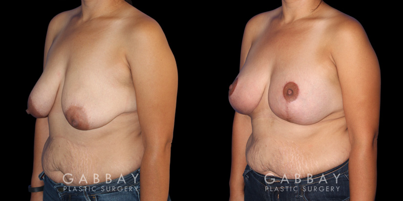 Patient 06 3/4th Left Side View Breast Augmentation - Silicone, Mastopexy Gabbay Plastic Surgery