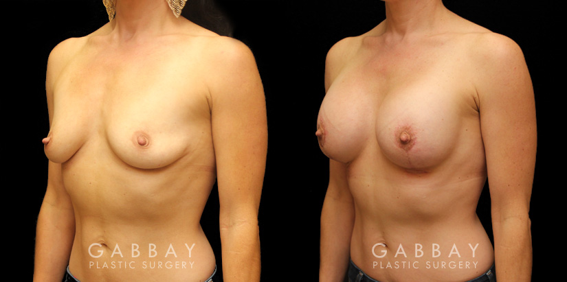 Patient 07 3/4th Left Side View Augpexy Gabbay Plastic Surgery