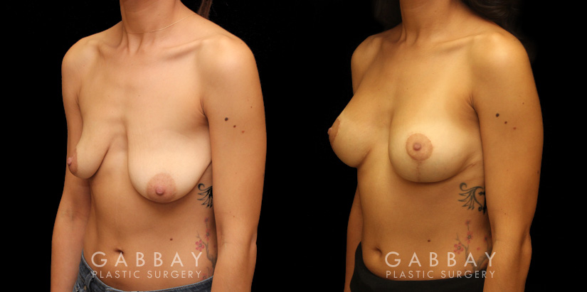 Patient 09 3/4th Left Side View Augpexy with mesh Gabbay Plastic Surgery