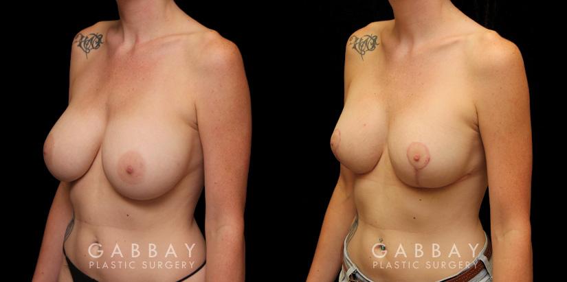 Patient 10 3/4th Left Side View Augpexy Gabbay Plastic Surgery