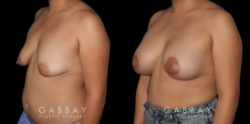 Patient 15 3/4th Left Side View Breast Augmentation - Silicone & Lift Gabbay Plastic Surgery